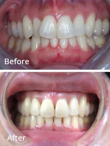 Before and After Invisalign Treatment at Bayview Lonsdale Dentist