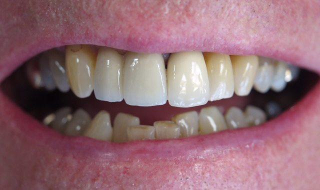 After dental implant procedure