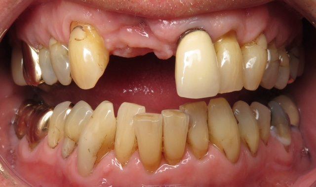 before dental implant procedure