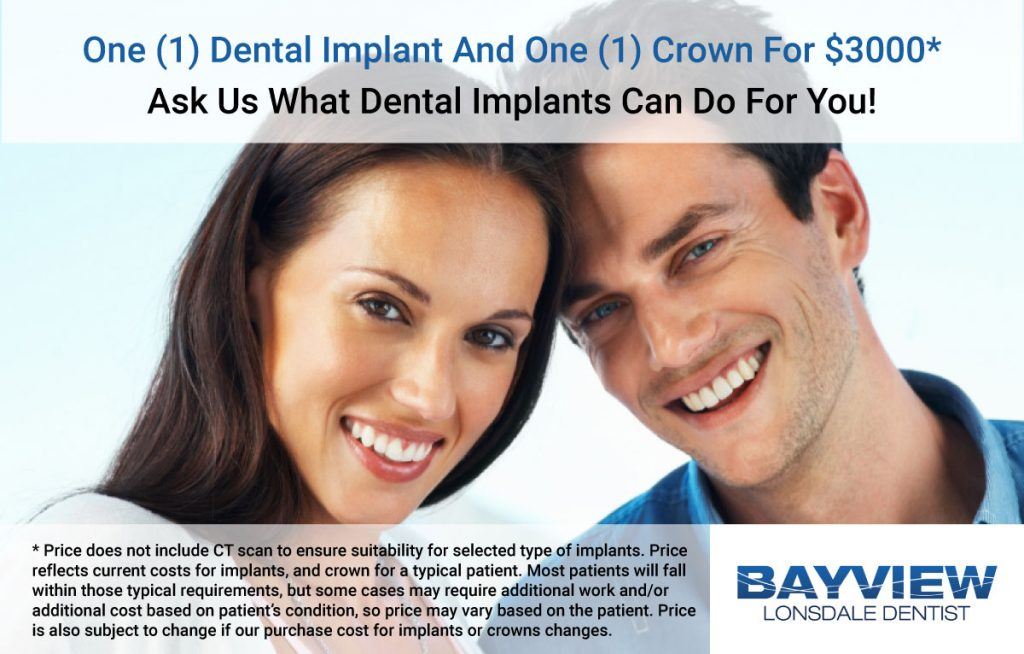 Dental Implants at Bayview Lonsdale Dentist