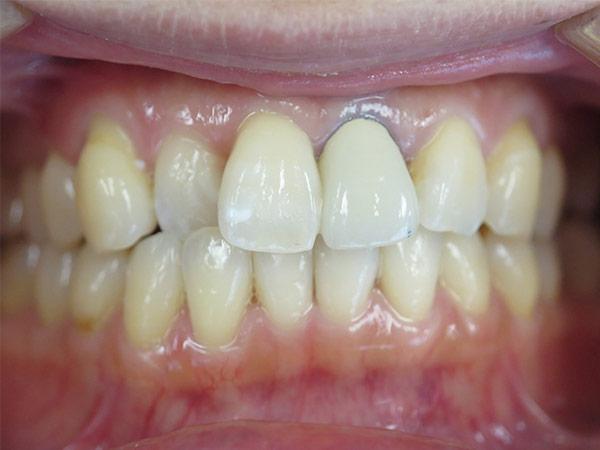 before dental procedure
